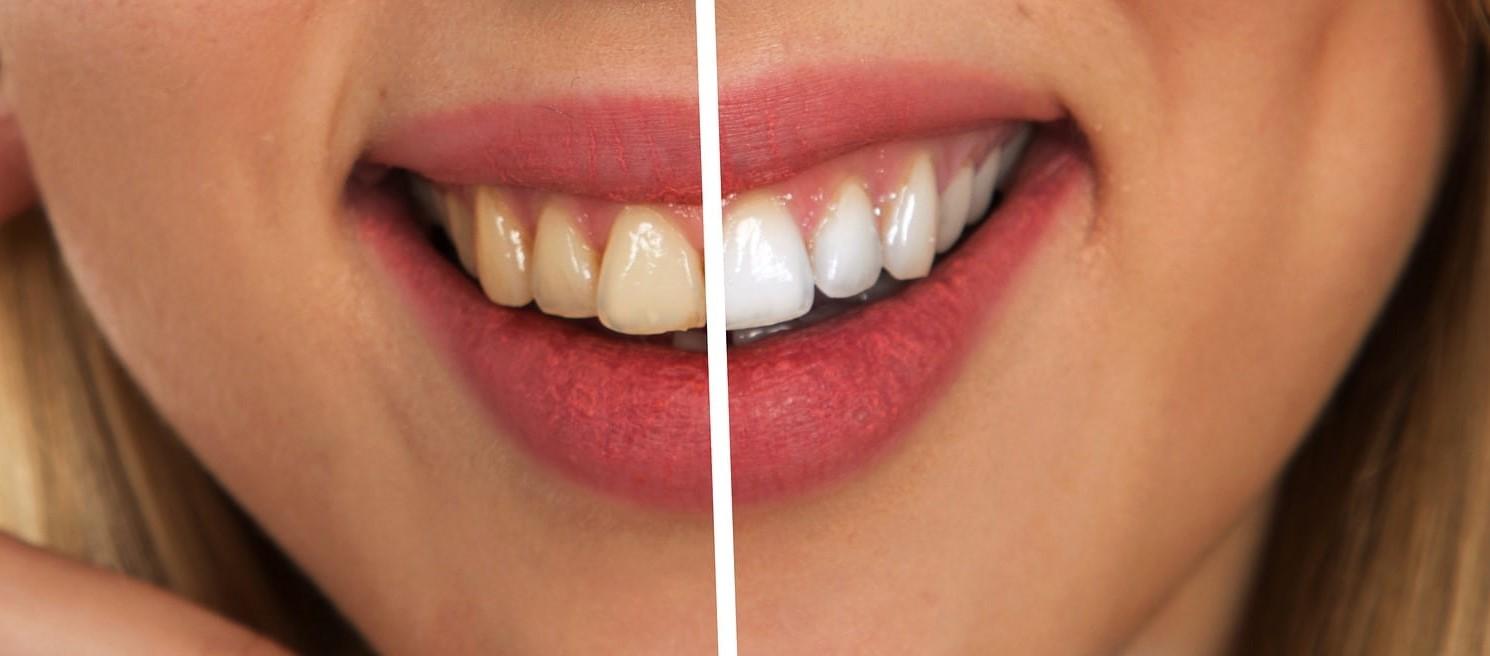 weißmacher Zahncreme